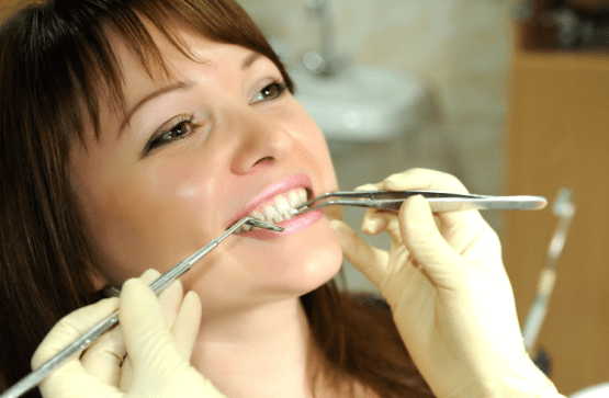 Smile Care Treatment