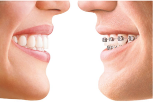 Dental-Braces-Treatment