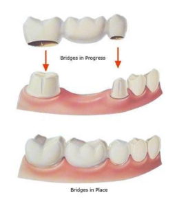 Dental Crown And Bridge Treatment