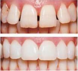 porcelain-veneers-treatment