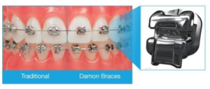 damon-braces-2