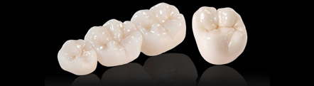 dental bridges treatment in delhi