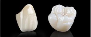 Best Dental Crown Treatment