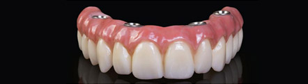 Denture Stabilization Treatment