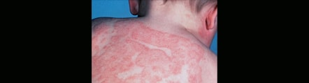 Eczema treatment in Delhi