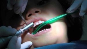 Teeth Cleaning India