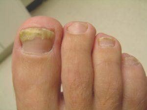 nails-diseases