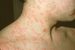 Urticaria Skin Allergy Treatment