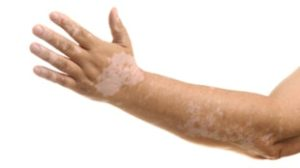 Vitiligo Surgery In Delhi