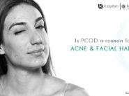PCOD a reason for Acne and Facial Hair