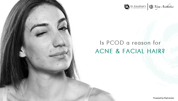 PCOD- a reason for Acne and Facial Hair